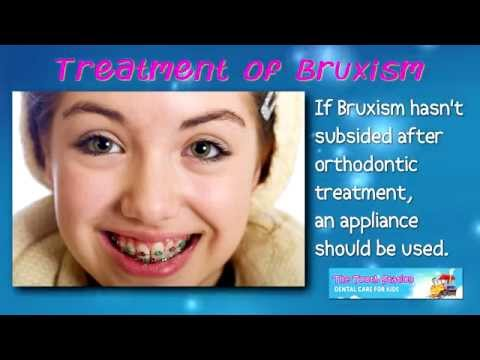 Bruxism - Teeth Grinding - The Tooth Station