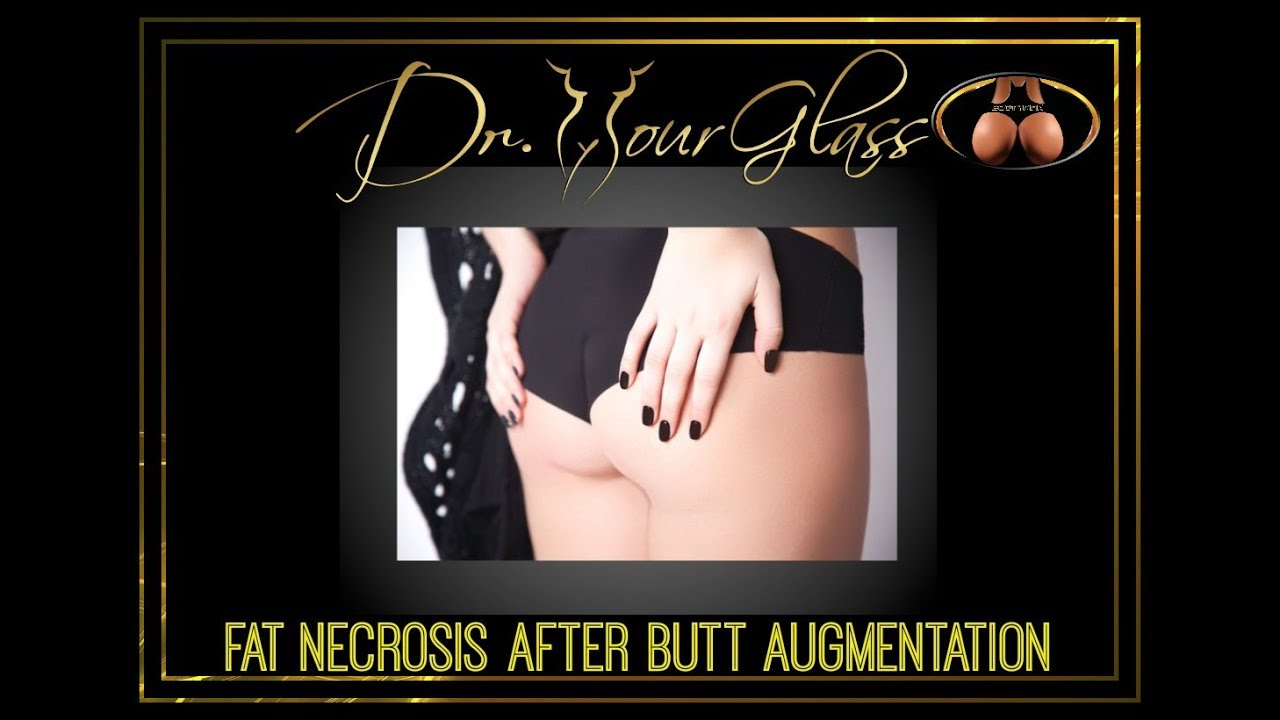 Buttock augmentation with fat complications