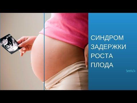 Синдром задержки развития плода (СЗРП) |  Беременность и Роды