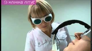 Лазерная эпиляция в Киеве в Клинике Литус(, 2011-03-24T04:46:23.000Z)