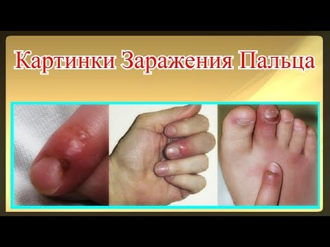 Картинки Заражения Пальца