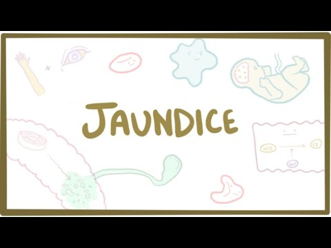 Jaundice - causes, treatment & pathology