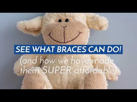 Braces Special in Our Belmont Office!