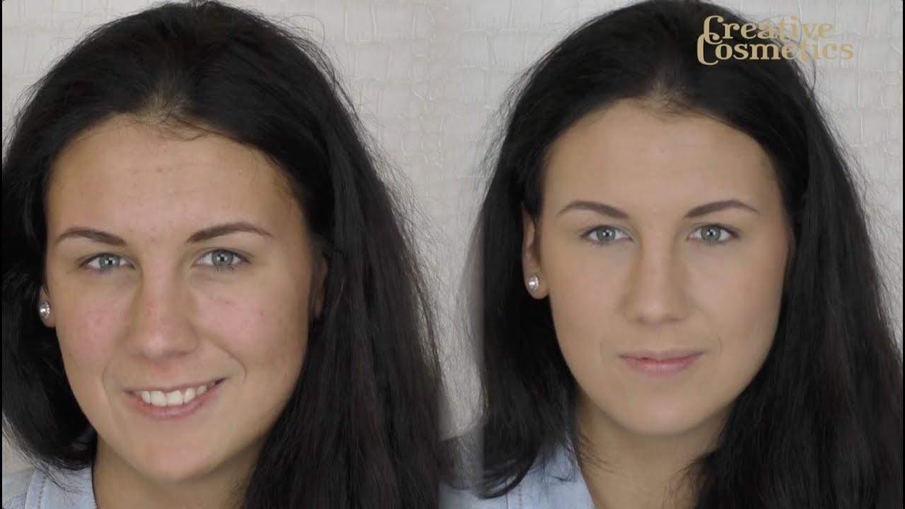 hoe egale huid krijgen