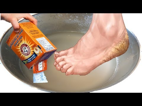 How To Use Baking Soda As A Treatment For Feet Calluses, Foot Odor, & Cracked Heels