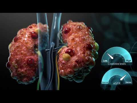 ADPKD Mechanism of Disease Video for Health Care Providers