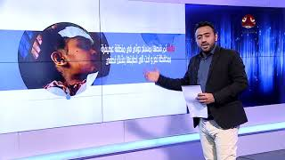 الرصد الاسبوعي لجرائم وانتهاكات حقوق الانسان في اليمن | 13-19/ 11 / 2017 | المرصد الحقوقي