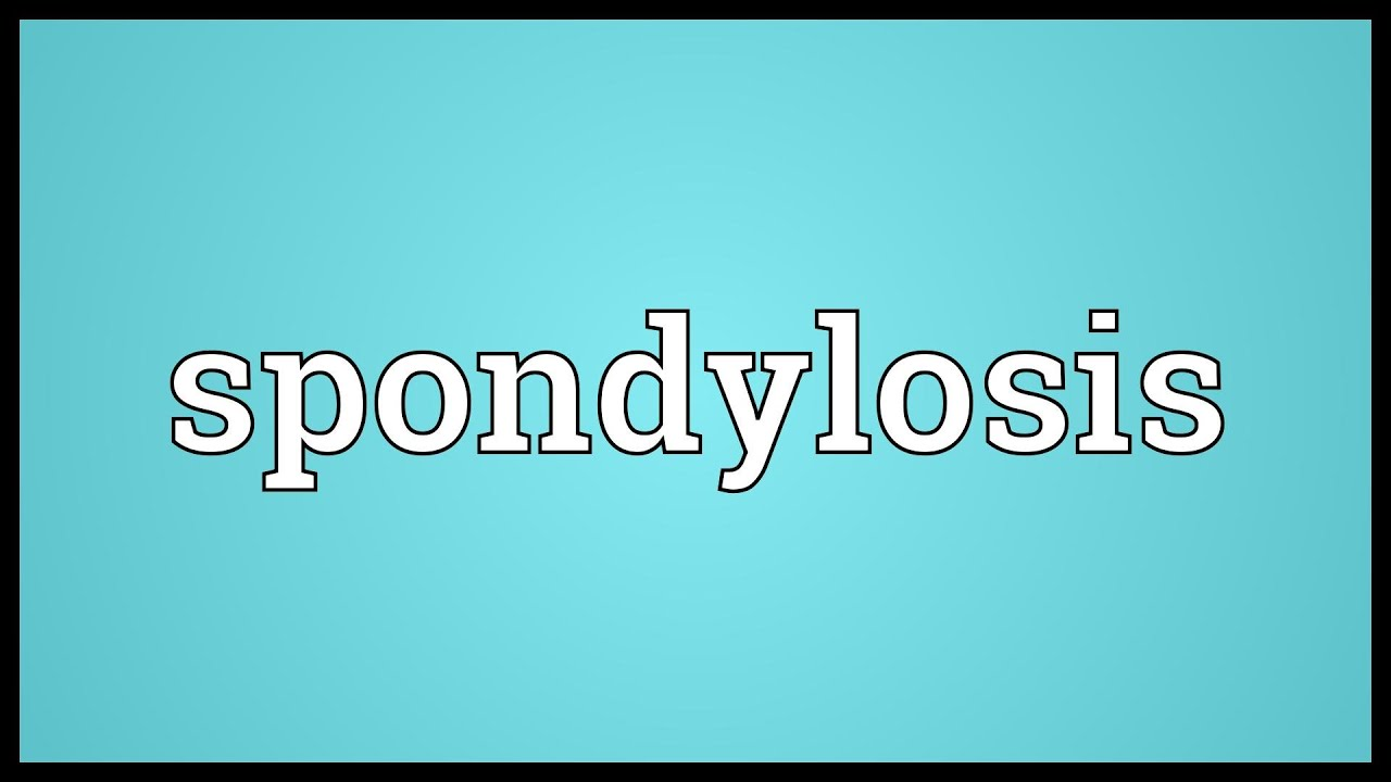 Spondylosis Meaning - YouTube