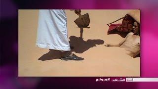 أنا الشاهد: العلاج عن طريق الردم في الرمال الساخنة في الجزائر