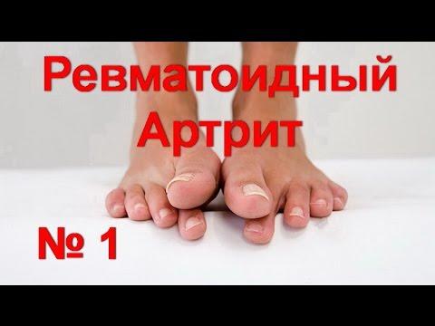Ревматоидный артрит лечение без таблеток - № 1! Деформация пальцев ног. Как снять  боль в суставах