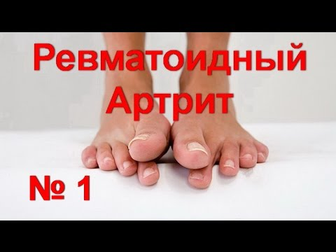 Подагрический артрит голеностопного сустава: лечение и