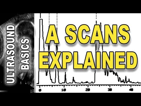 ultrasound – A scans explained