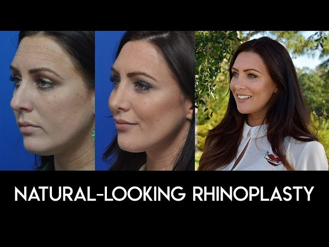 Natural Looking Rhinoplasty