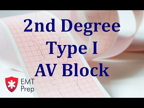 2nd Degree Type 1 AV Block ECG