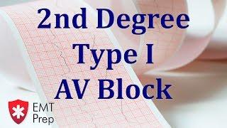 2nd Degree Type 1 AV Block ECG - EMTprep.com