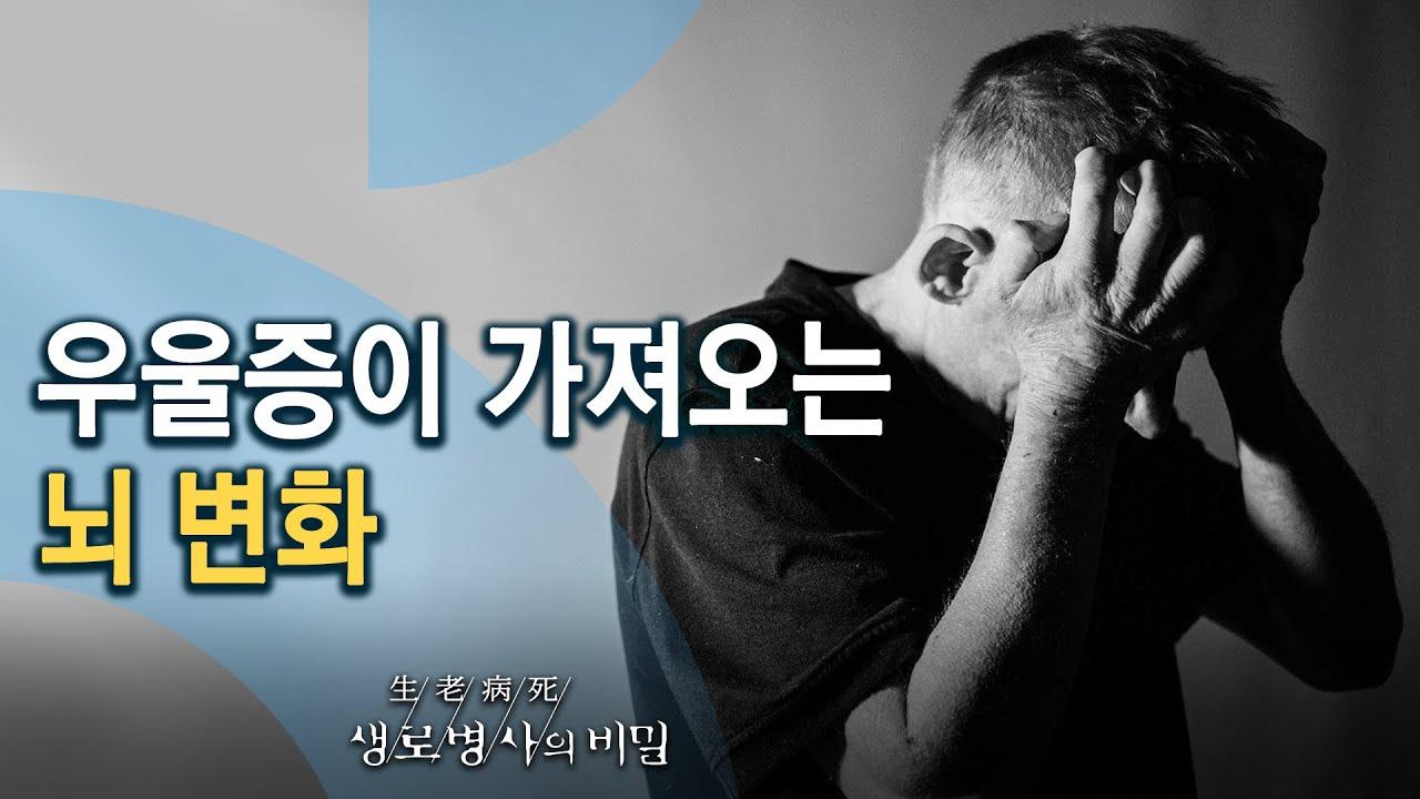 코로나블루, 우울증이 가져오는 뇌 변화 (KBS_774회_20210505)