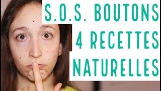 SOS BOUTONS : 4 astuces MAISON pour les faire partir RAPIDEMENT et NATURELLEMENT