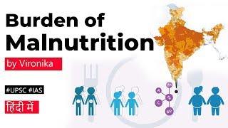 Burden of MALNUTRITION in under 5 children, The Lancet Child & Adolescent Health report #UPSC #IAS