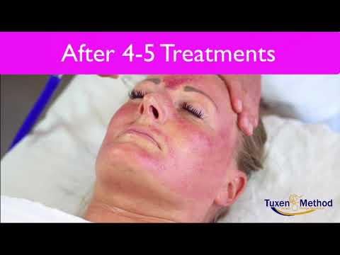 Face Lift With Vacuum Therapy