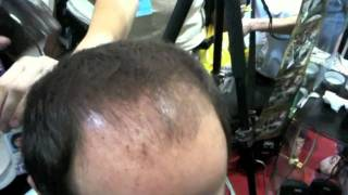 Hair Loss Remedies - Caboki video clip(FREE SAMPLE: http://www.caboki.com/free Look 10 years younger, in seconds. Caboki hair loss remedy eliminates the appearance of hair loss and thinning ..., 2011-06-17T02:15:46.000Z)