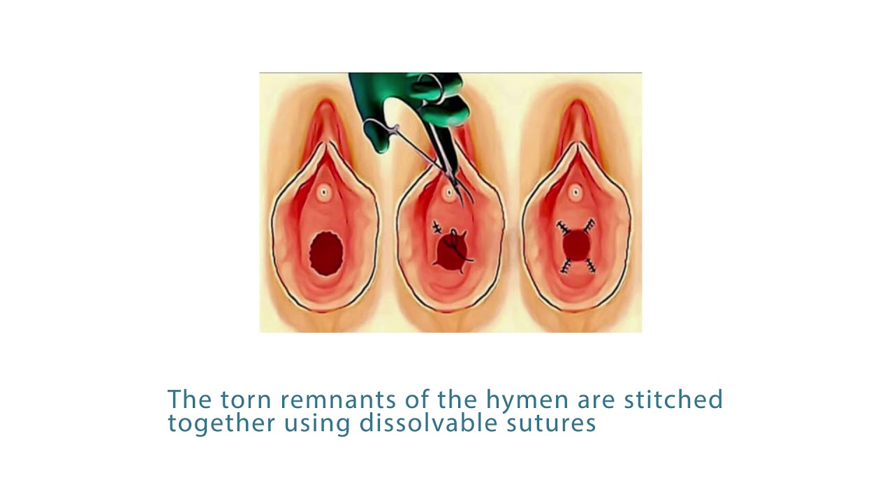 Download Benefits of Hymenoplasty   Gynecologists   Women's Health