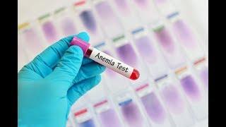 10 mejores remedios caseros para la anemia