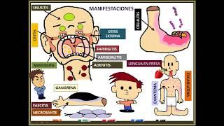 Estreptococo pyogenes