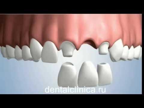 Какие коронки на зубы выбрать
