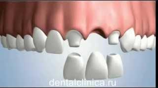 Лечение зубов красивая улыбка виниры коронки протезирование имплантация приятные цены(, 2014-03-25T19:50:31.000Z)