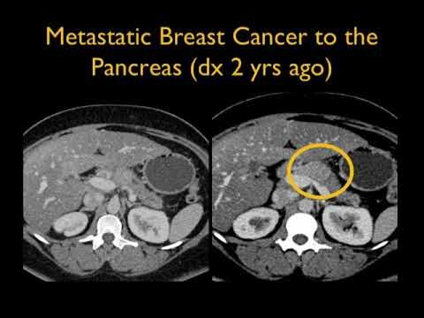 pancreatic cancer ct