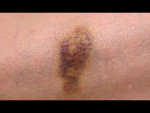 10 Síntomas De Leucemia Que Pueden Fácilmente Pasar Por Desapercibidos!
