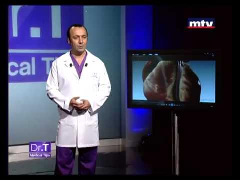 Heart Attack Tips Beirut Lebanon - Dr T Medical Tips