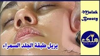 مقشر فى كل بيت يزيل طبقة الجلد السمراء ويعالج التجاعيد فى ثلاثة ايام اقوى ماسك لتبيض الوجه والجسم
