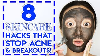 8 Skincare Hacks That Stop Acne & Pimples!