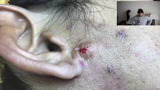 cyst explosion on the ear and explodes on camera!