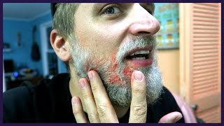 Repeat youtube video I BURNED MY FACE!!