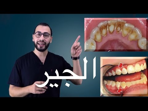 🎈شرح تنظيف وازالة الجير(التكلسات) علي الاسنان,عيوب التنظيف ومميزاته ؟اجابة  الاسئلة المتعلقة بالجير