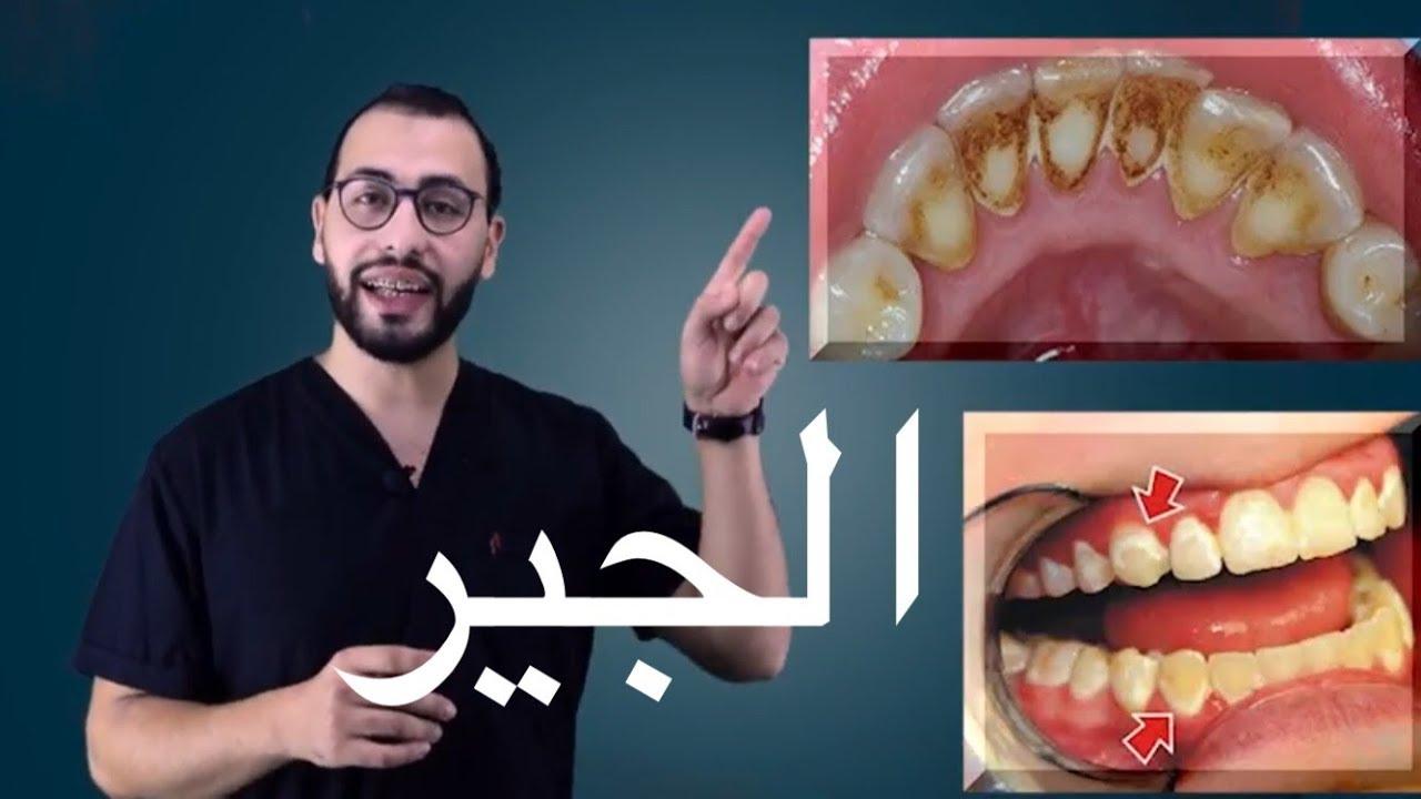 ماذا تفعل اذا خلعت شيئا من اسنانك تعليمات مهمة جدا بعد الخلع Youtube