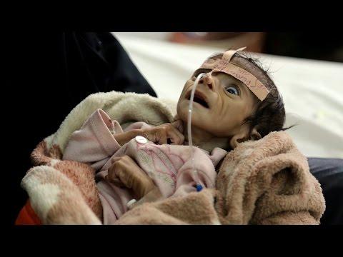 Saudi Arabia Devastating Yemen Into Famine - U.S. Refuses To Comment