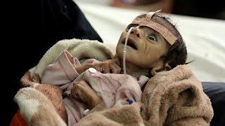 U.S. Refuses To Comment - Saudi Arabia has devastated Yemen with bombing raids, throwing the already-p