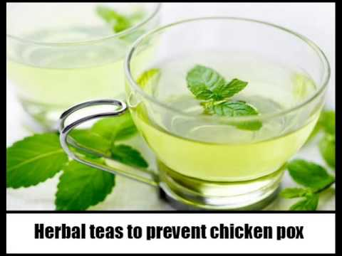 17 Home Remedies For Chicken Pox Youtube