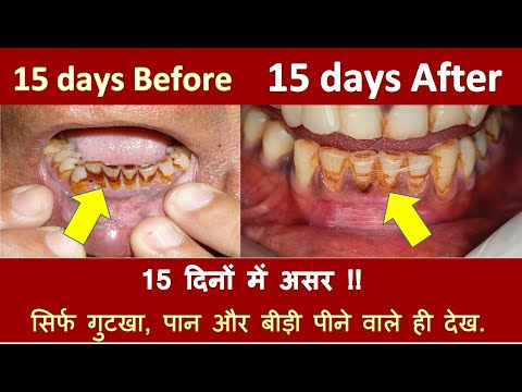 How to Whiten Yellow Teeth, Gutka Teeth and Cigarette Stains from Teeth at Home.