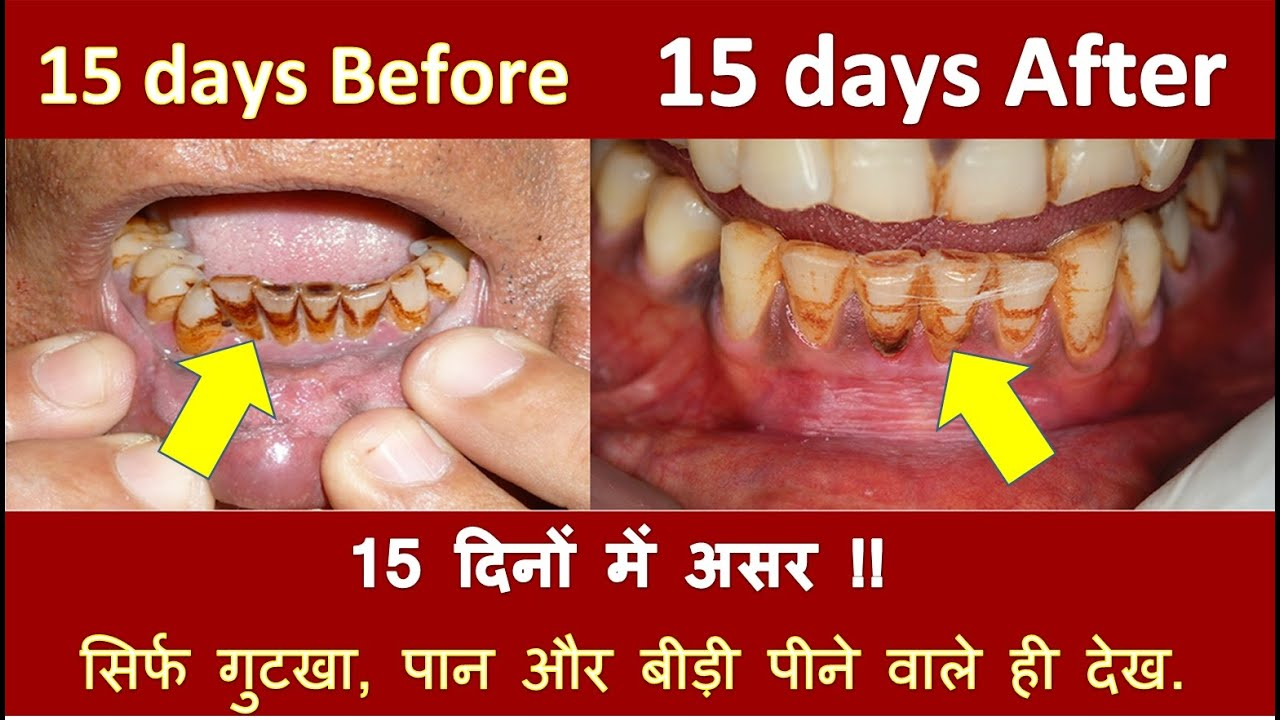 How To Whiten Yellow Teeth Gutka Teeth And Cigarette Stains From