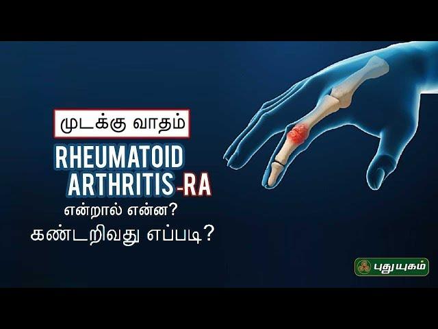 முடக்கு வாதம் என்றால் என்ன? கண்டறிவது எப்படி? Rheumatoid Arthritis   Doctor On Call   06/07/2020