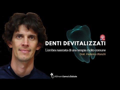 Denti Devitalizzati - L'ombra Nascosta di una terapia molto comune