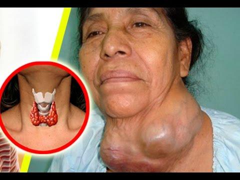 NO MAS! medicamentos y mentiras de los doctores, la cura de la tiroides la tienes en tu casa