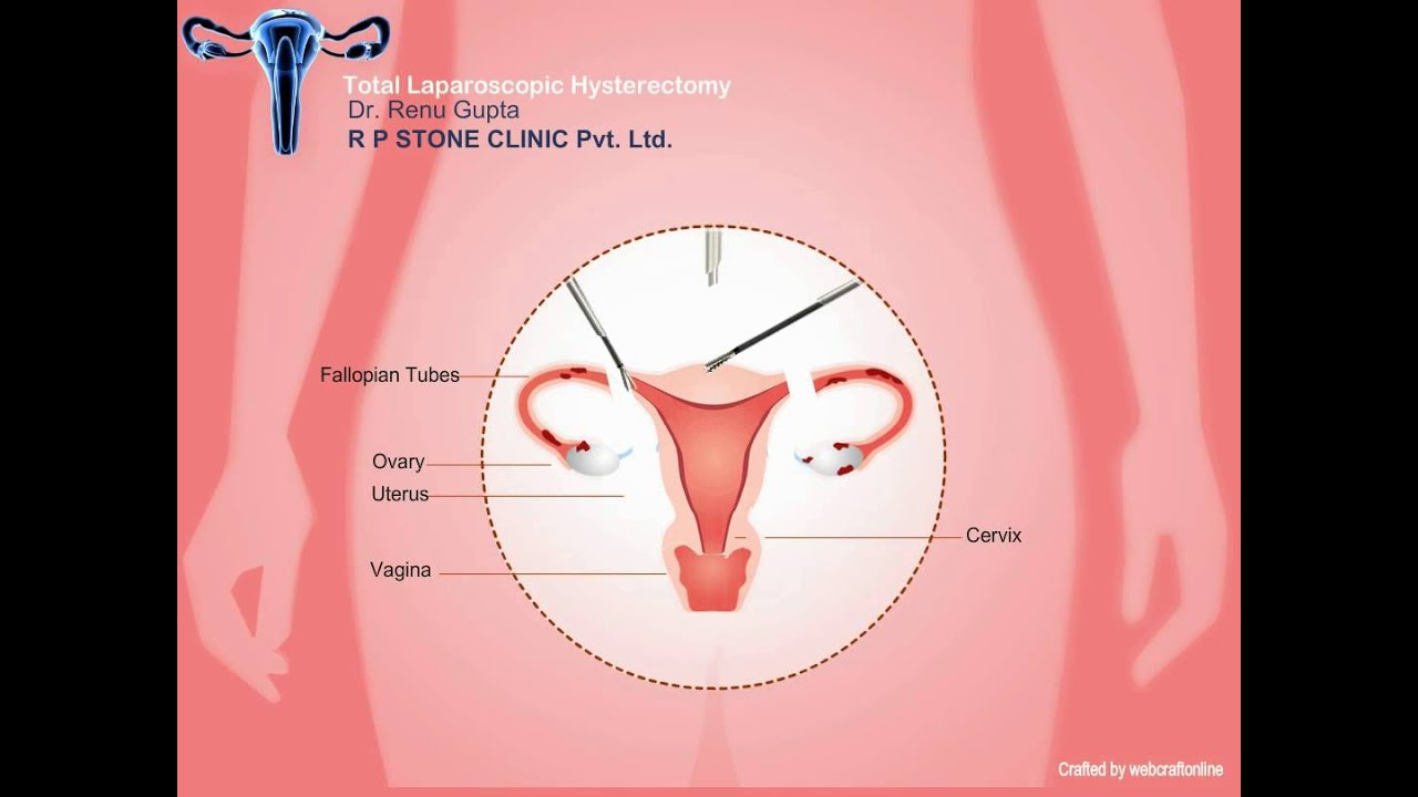 Animation of Total Laparoscopic Hysterectomy - YouTube Laparoscopic Hysterectomy Procedure
