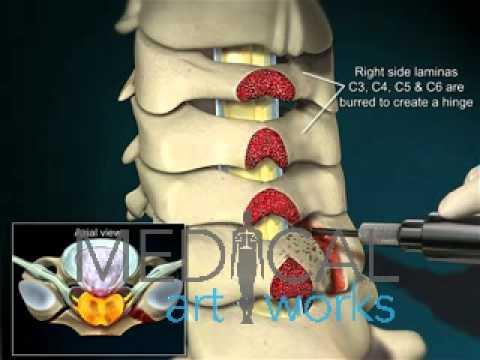 Medical Animation | 3 Level cervical open door laminoplasty, C3, C4, C5, C6