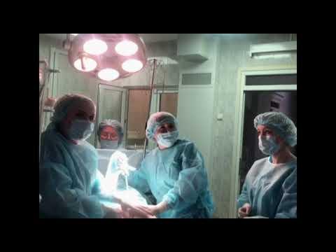 Лечебно-диагностическая лапароскопия.