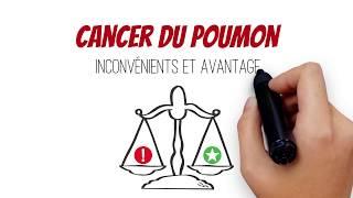 Cancer du poumon - Inconvénients et avantages - Vidéo 3
